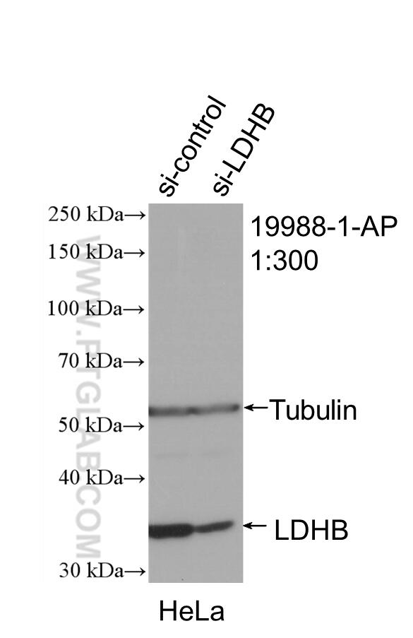 WB analysis of HeLa using 19988-1-AP