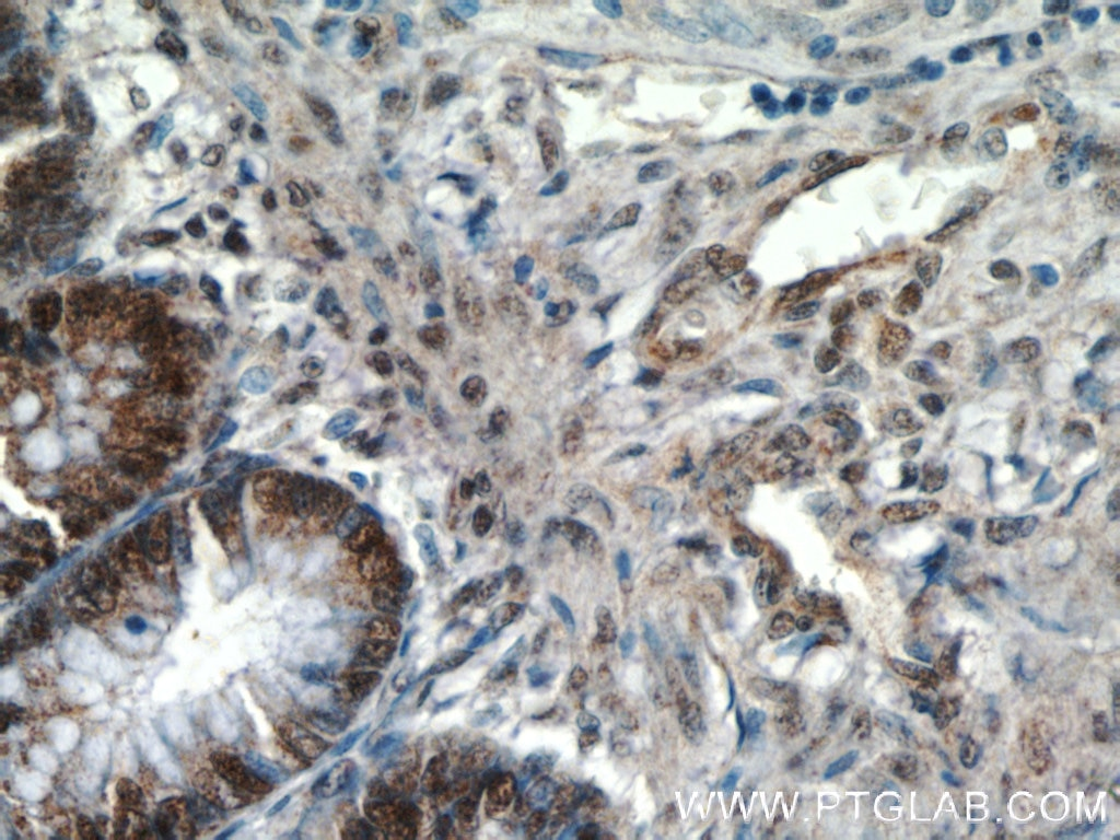 IHC staining of human colon using 12281-1-AP