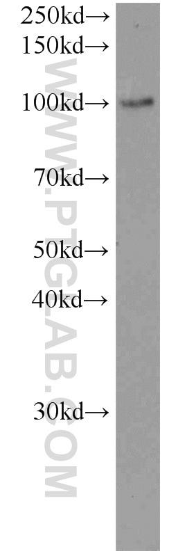 WB analysis of mouse testis using 19968-1-AP
