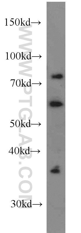 LIMK1 Polyclonal antibody