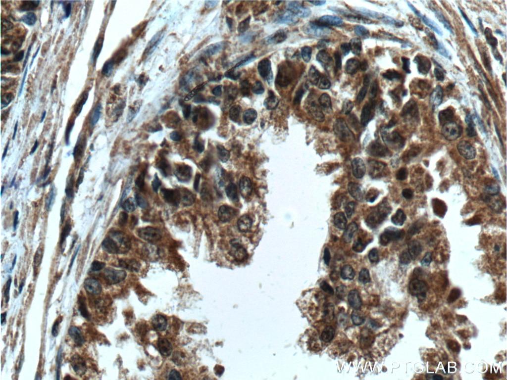 IHC staining of human prostate cancer using 60344-1-Ig