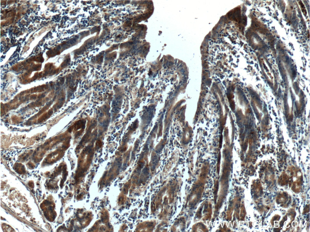 Immunohistochemistry of paraffin-embedded human stomach tissue slide using  25889-1-AP( LIPF Antibody) at dilution of 1:200 (under 10x lens).