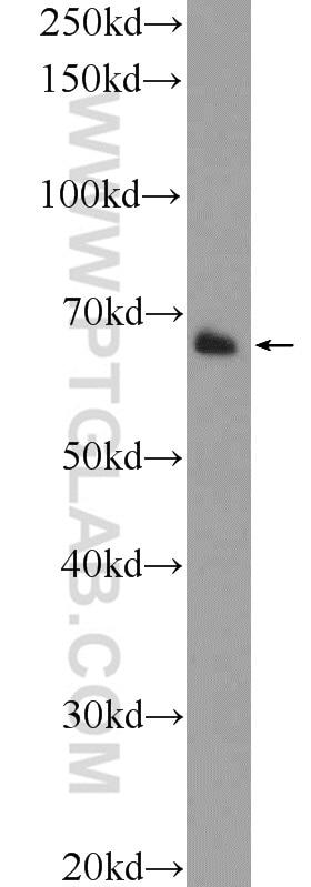 12987-1-AP;rat heart tissue