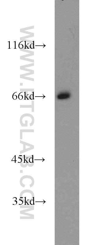 12987-1-AP;Y79 cells