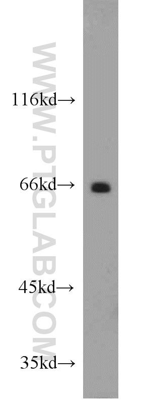 12987-1-AP;mouse brain tissue