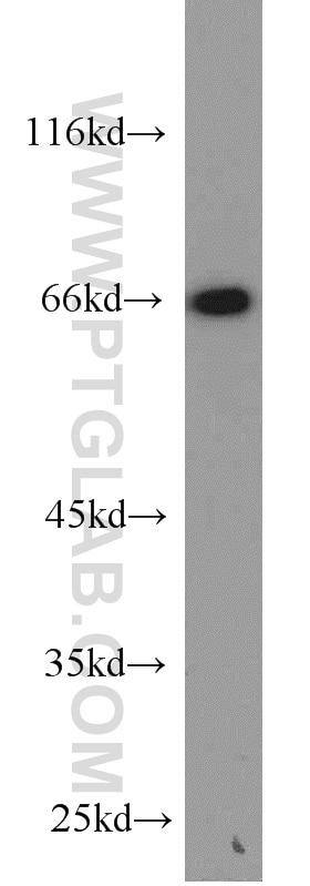 12987-1-AP;HepG2 cells