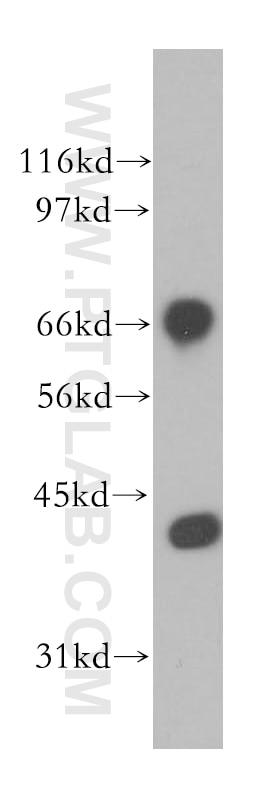 12987-1-AP;human brain tissue