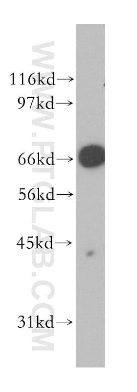 12987-1-AP;Jurkat cells