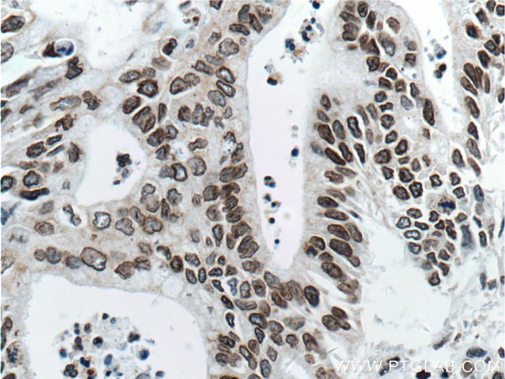 IHC staining of human pancreas cancer using 66095-1-Ig