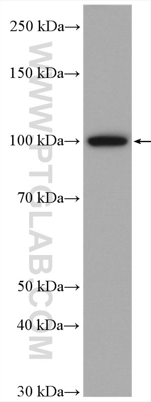 WB analysis of HeLa using 15440-1-AP