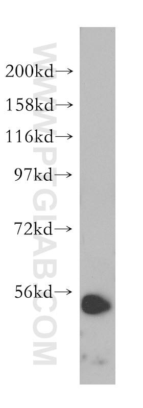 WB analysis of HeLa using 15082-1-AP