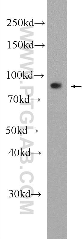 WB analysis of HeLa using 25017-1-AP