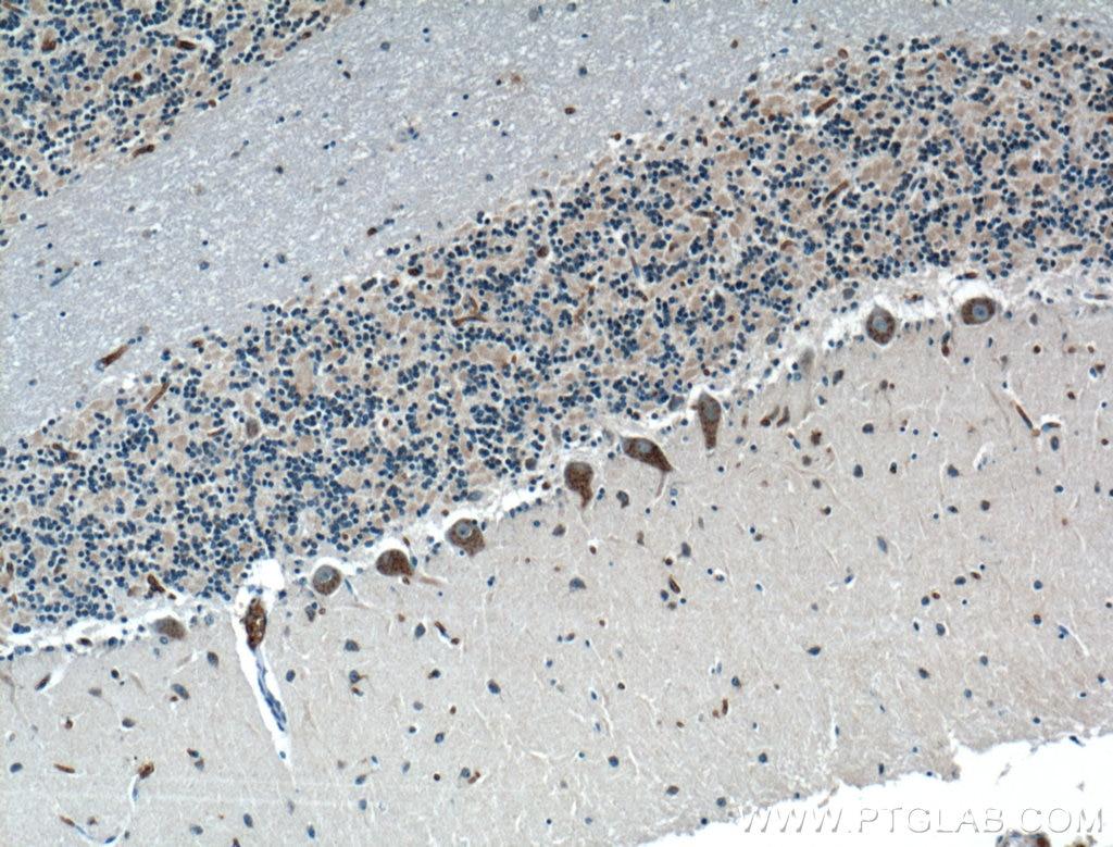 IHC staining of human cerebellum using 25783-1-AP