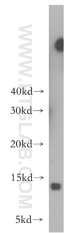 WB analysis of human spleen using 10874-1-AP