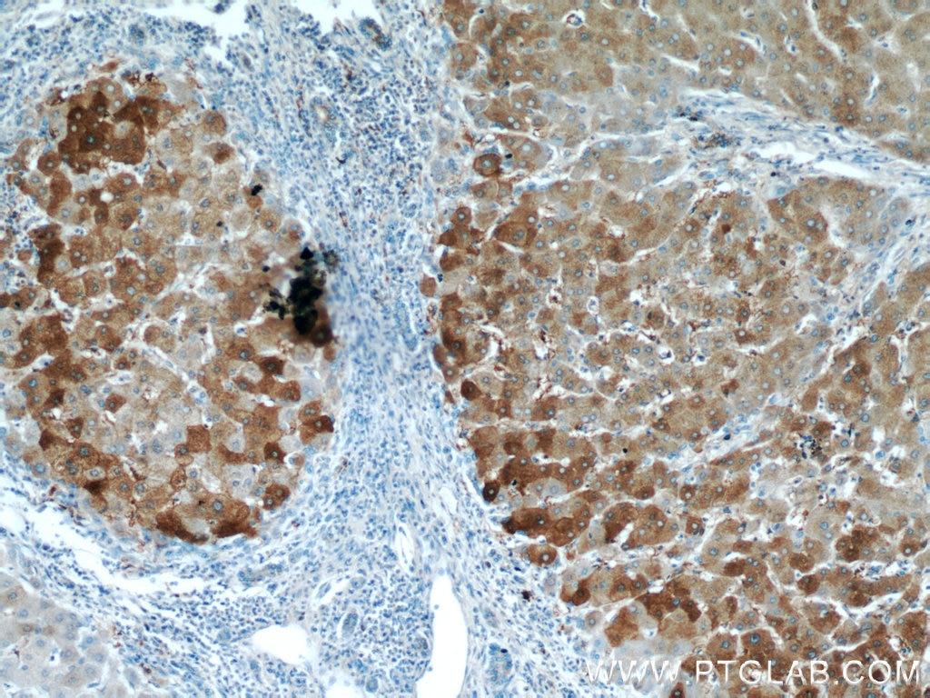 IHC staining of human hepatocirrhosis using 20331-1-AP