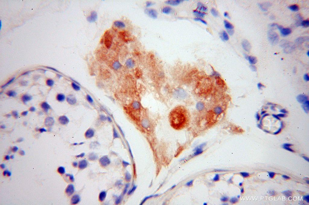 IHC staining of human testis using 16178-1-AP