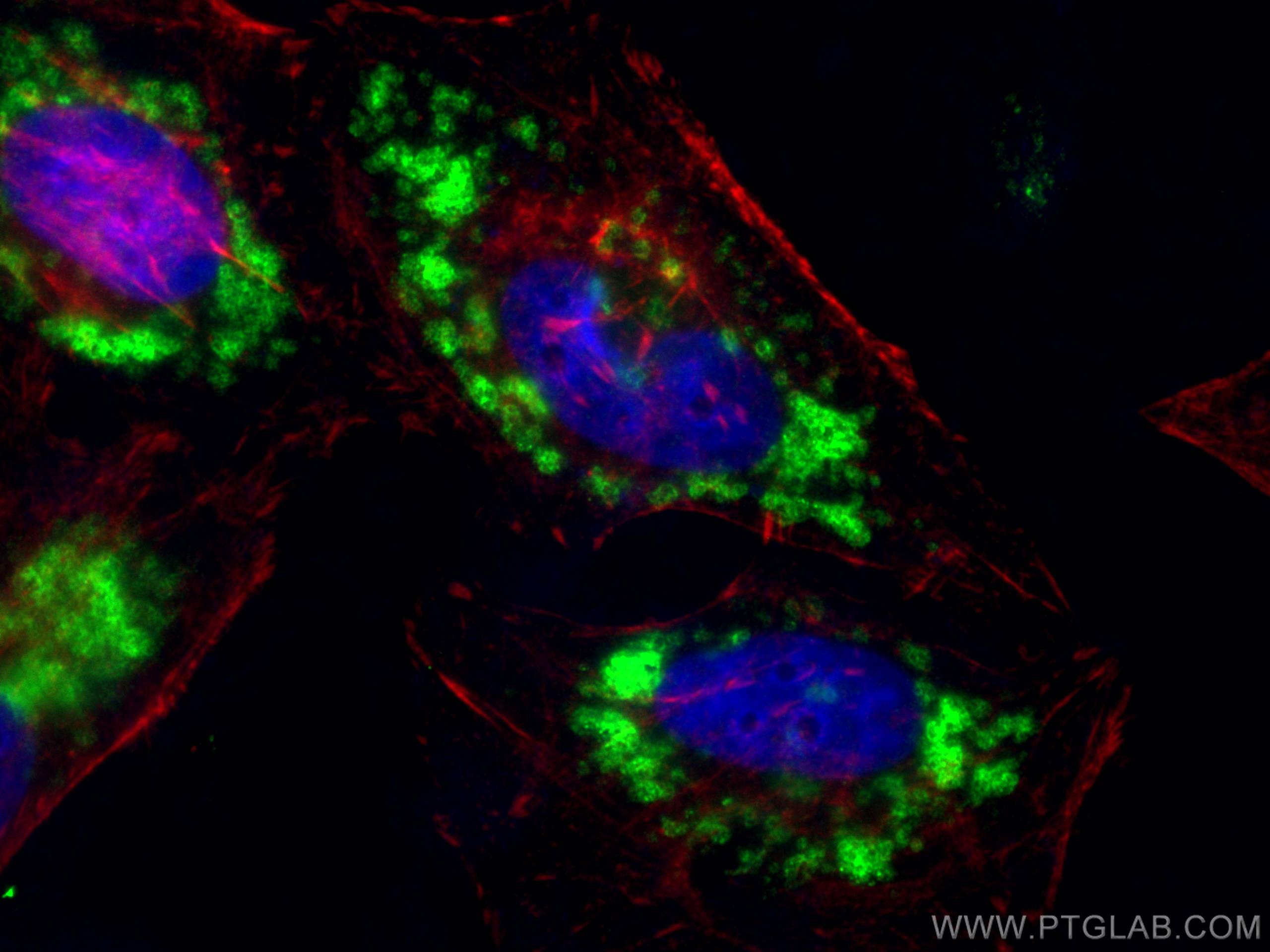 IF Staining of HeLa using 10694-1-AP