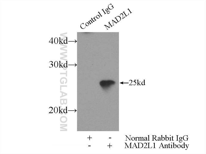 IP experiment of HEK-293 using 10337-1-AP
