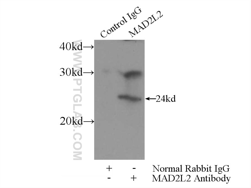 IP experiment of mouse brain using 12683-1-AP