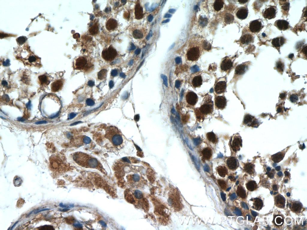 IHC staining of human testis using 10280-1-AP