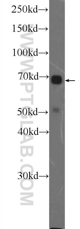 WB analysis of SKOV-3 using 11164-1-AP