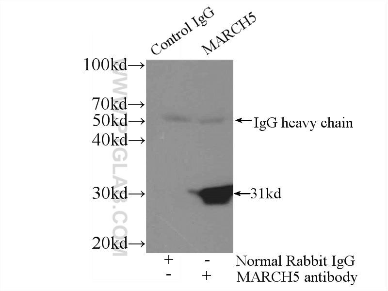 IP experiment of HeLa using 12213-1-AP