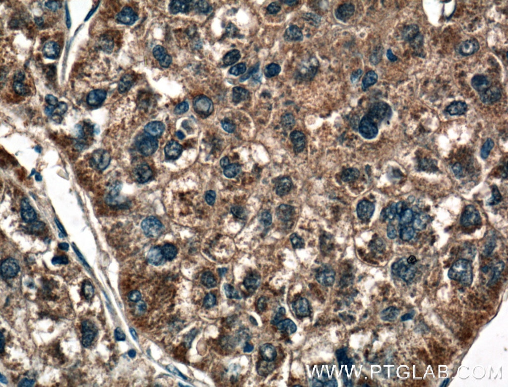 IHC staining of human liver cancer using 21837-1-AP