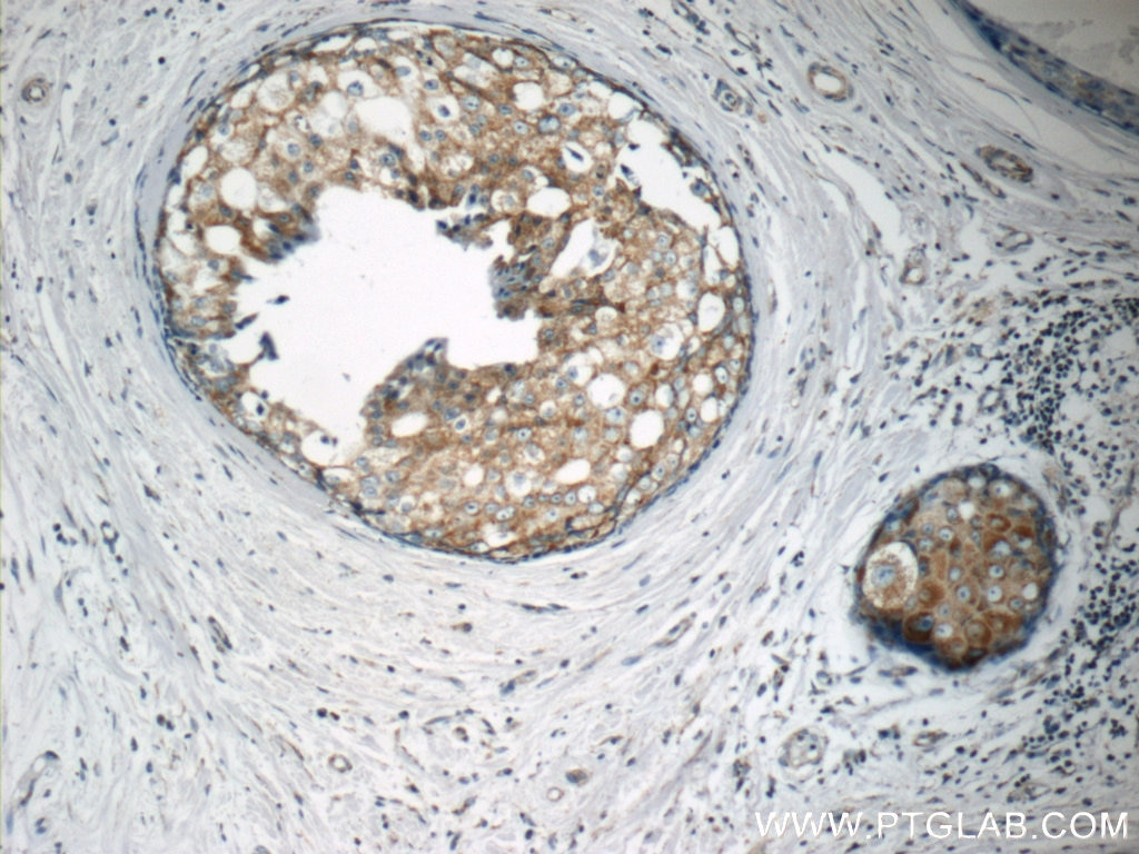 IHC staining of human breast cancer using 10082-2-AP