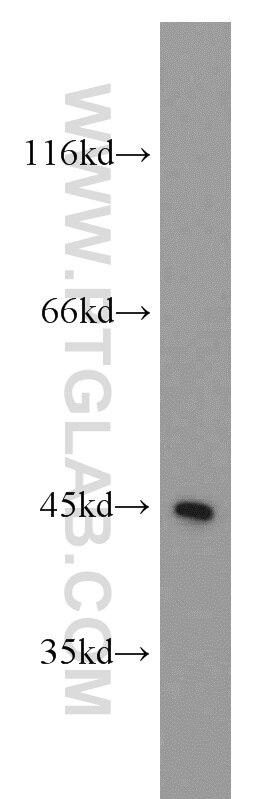 WB analysis of Jurkat using 55200-1-AP