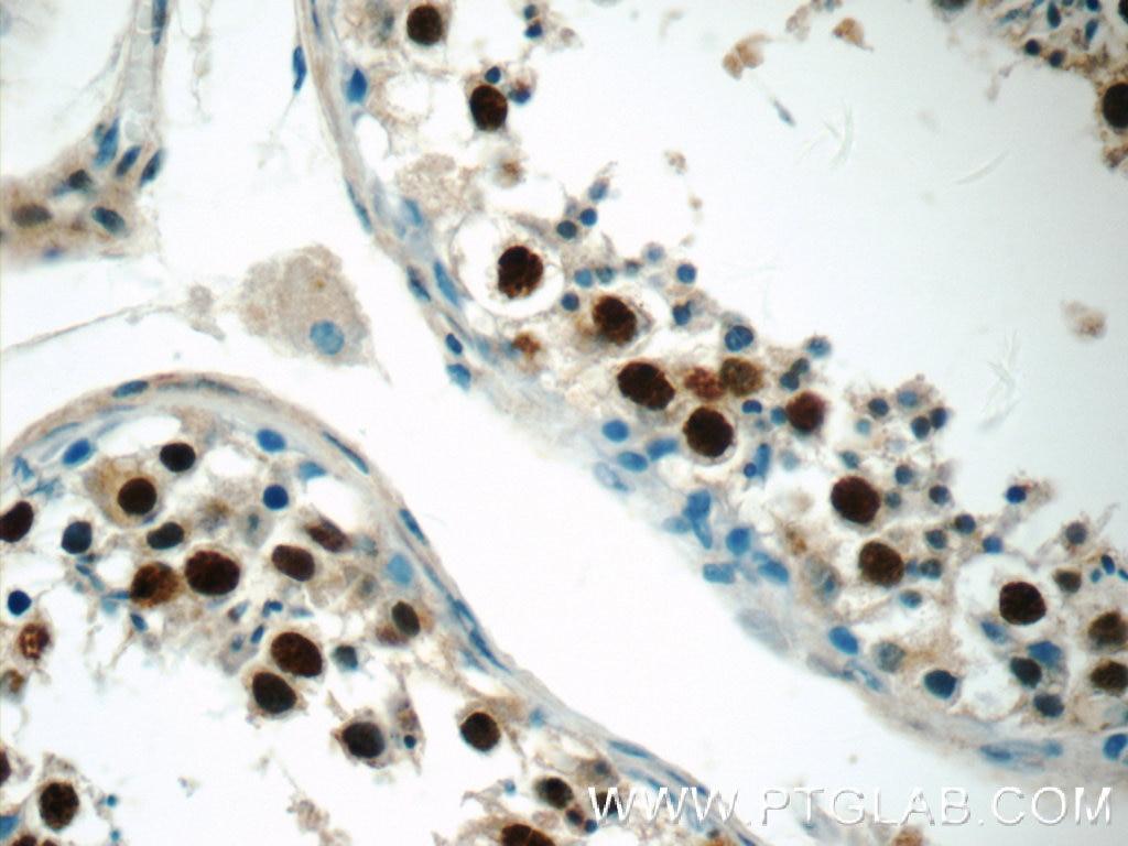 IHC staining of human testis using 24721-1-AP