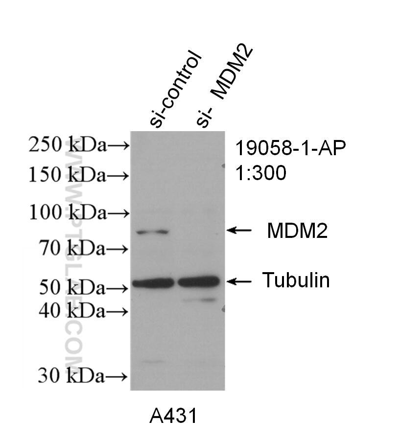 WB analysis of A431 using 19058-1-AP