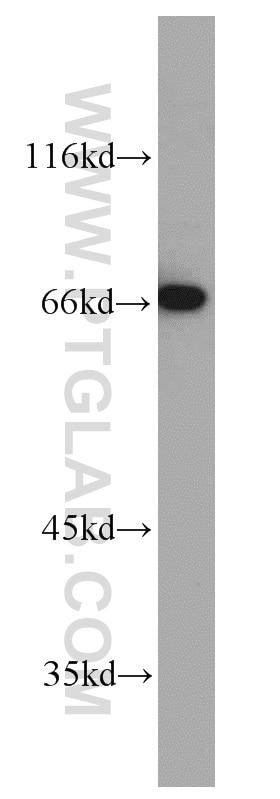 WB analysis of SH-SY5Y using 10056-1-AP