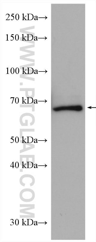 WB analysis of Neuro-2a using 15073-1-AP