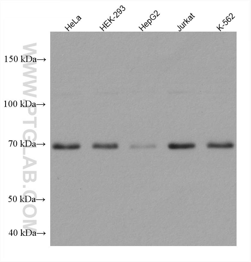 WB analysis using 67733-1-Ig