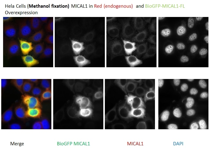 IF Staining of HeLa using 14818-1-AP