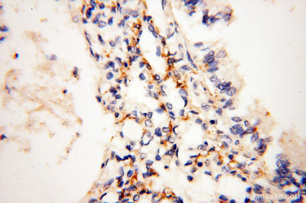 IHC staining of human lung using 14818-1-AP