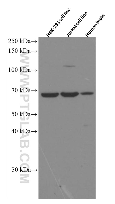 WB analysis using 66092-1-Ig