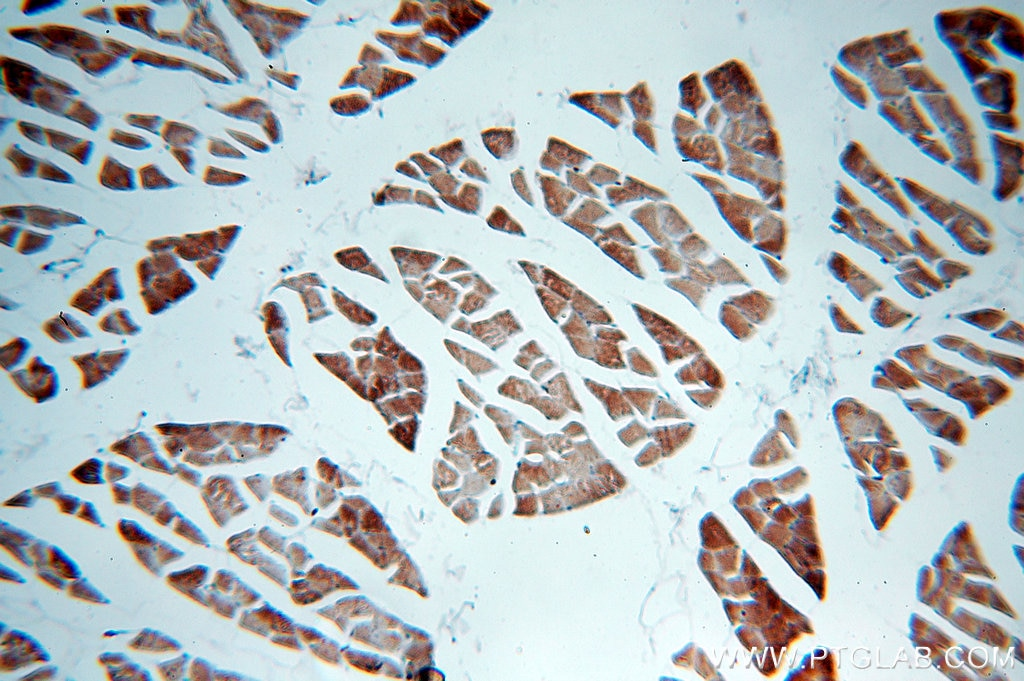 IHC staining of human skeletal muscle using 13614-1-AP