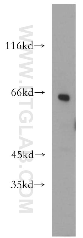 15265-1-AP;mouse testis tissue