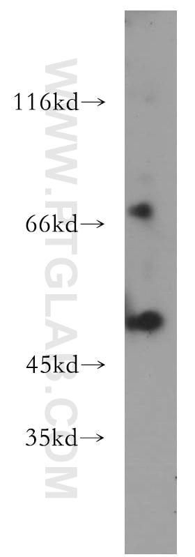 15265-1-AP;mouse heart tissue