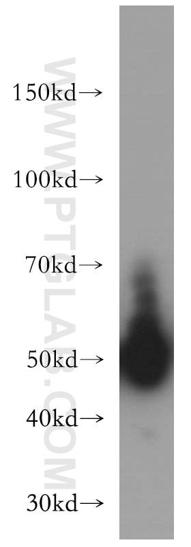 15265-1-AP;mouse brain tissue
