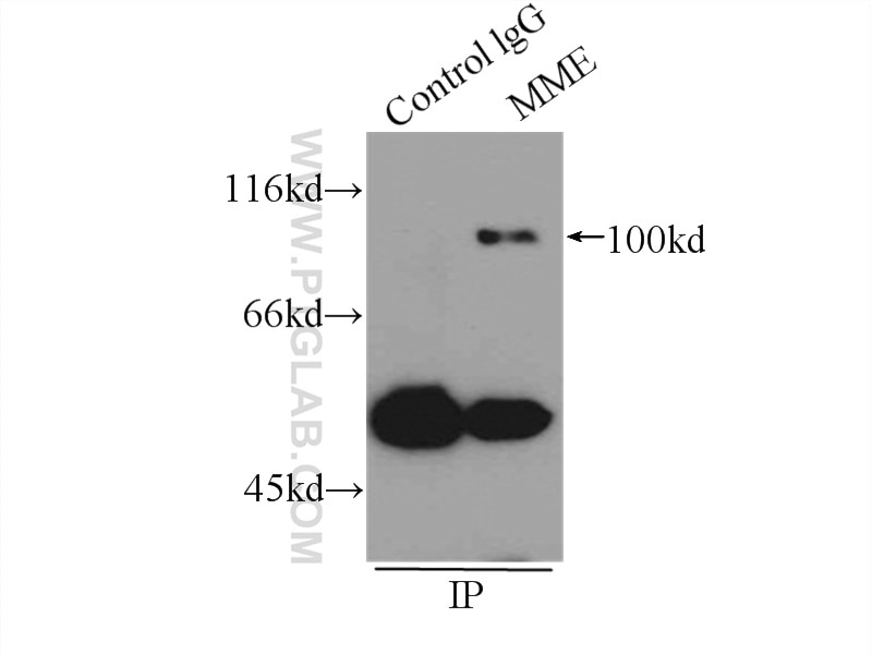 IP experiment of Raji using 18008-1-AP