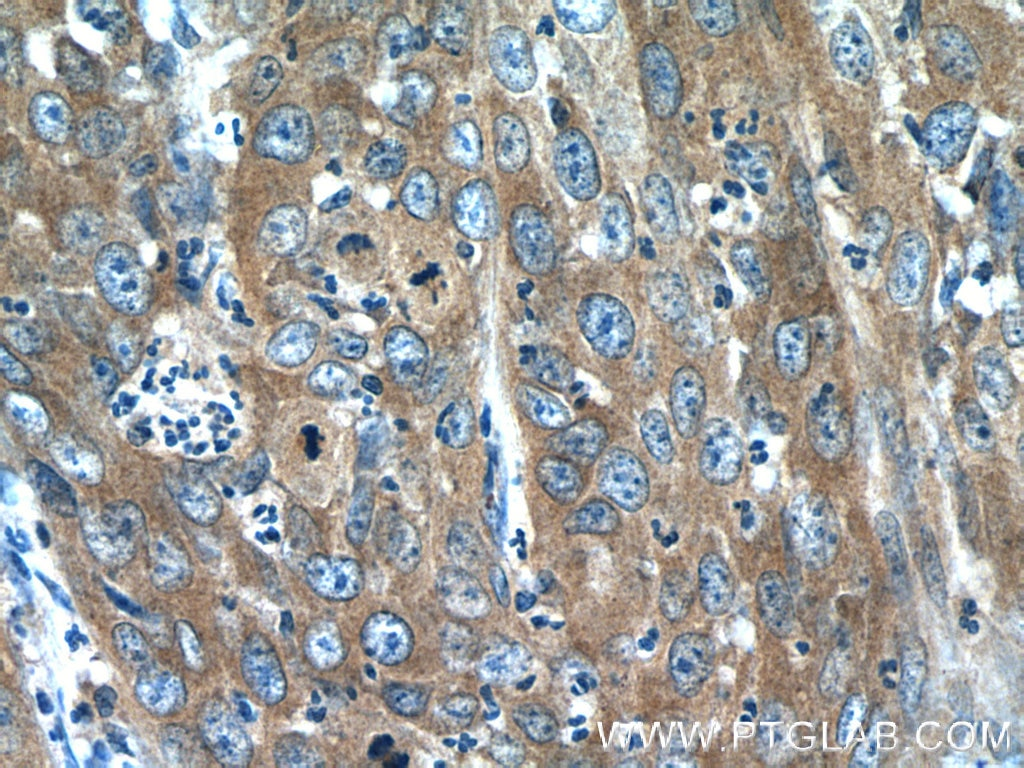 IHC staining of human cervical cancer using 10371-2-AP