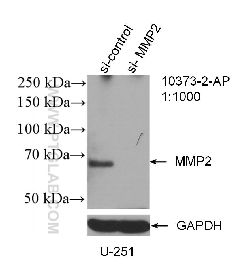 WB analysis of U-251 using 10373-2-AP