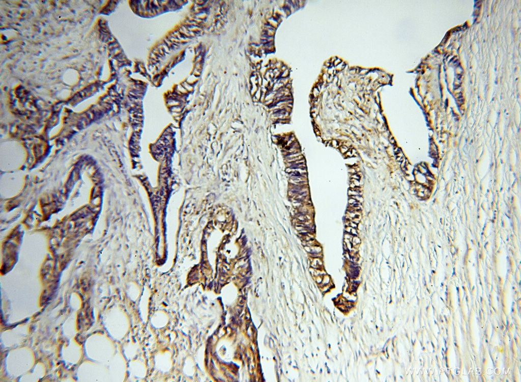 IHC staining of human breast cancer using 17873-1-AP