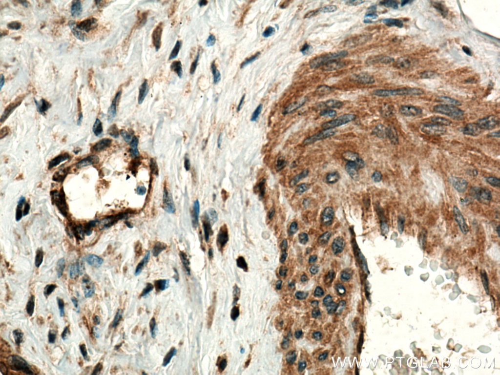 IHC staining of human cervical cancer using 10375-2-AP