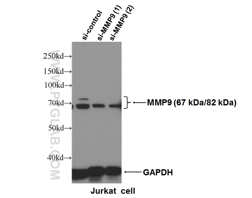MMP9 (N-terminal)
