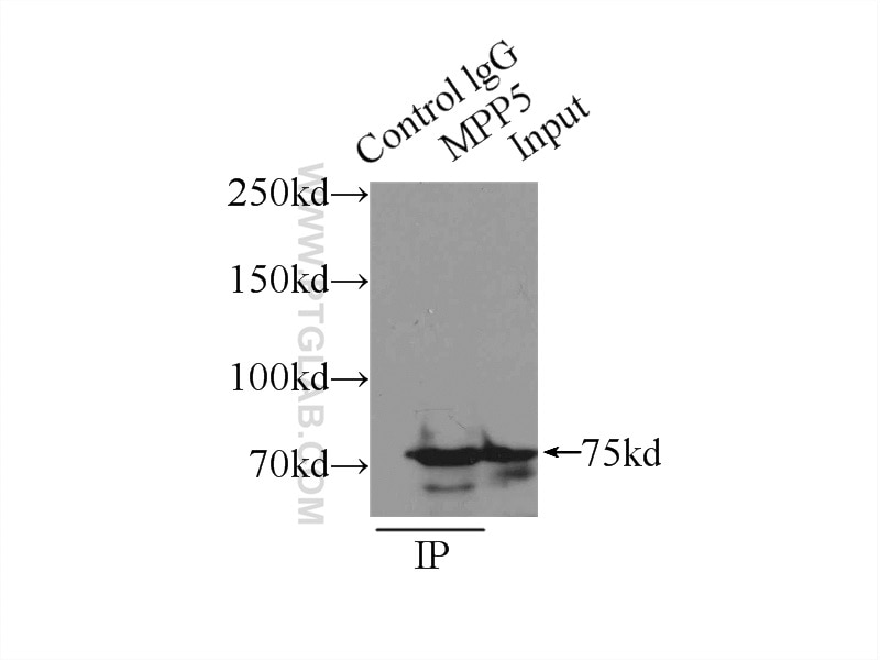 IP experiment of mouse brain using 17710-1-AP