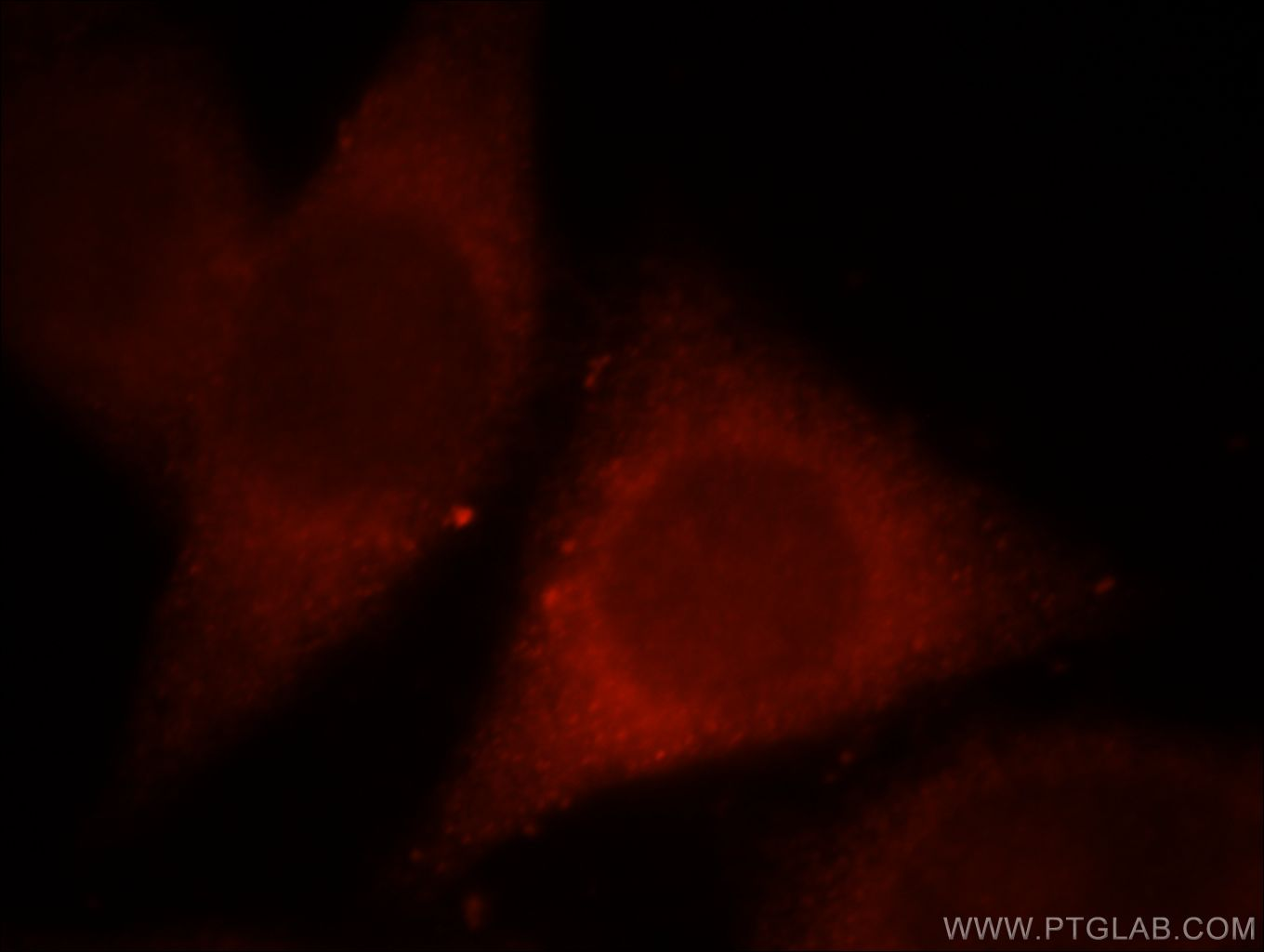 MPPED1 Immunofluorescence IF 13677-1-AP MPPED1 Antibody 239AB; C22orf1; FAM1A; FLJ50009; FLJ54633; FLJ59965; FLJ78907; MGC88045