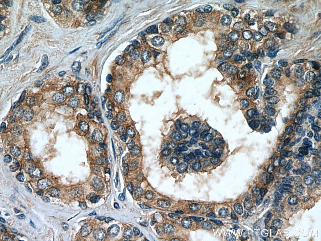 IHC staining of human prostate hyperplasia using 67230-1-Ig